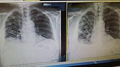 Click image for larger version.  Name:Ribs.jpg Views:35 Size:153.9 KB ID:348539